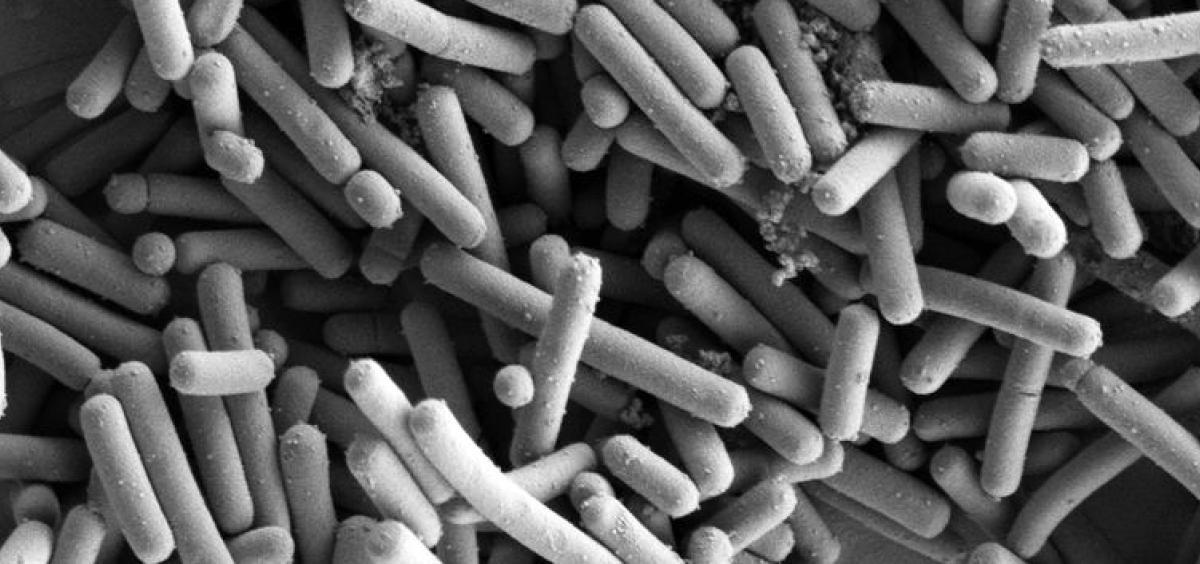 Lactobacillus johnsonii, SEM image by Kathryn Cross, IFR